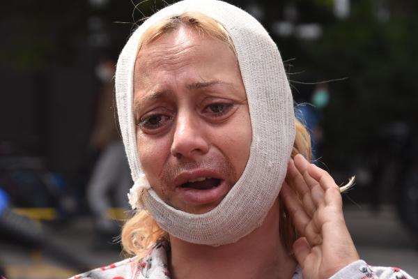 Köpek beslerken saldırıya uğrayan kadın: Tek suçum hayvanları doyurmak 2 – a2177532e2f19eb2b8aa940603012c30