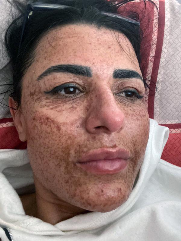 ANTALYA'DA YASAYAN ASLI ILHAN'IN (42) SOSYAL MEDYADAN GORUP GITTIGI 2 GUZELLIK MERKEZINDE YAPILAN LAZER UYGULAMASI SONRASI, YUZUNUN TAMAMINDA YANIKLAR OLUSMUSTU. (FOTO:ANTALYA-DHA-ARSIV)